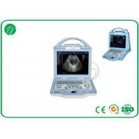 Quality Fully Digital type b Laptop Ultrasound Scanner with duable power supply mode for sale