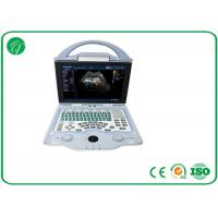 Quality Full Digital Doppler Ultrasound Machine Multi - Frequency Probe With A8 Embedded System for sale