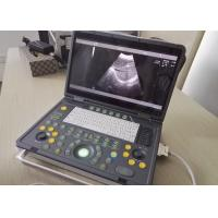 Quality Portable Pregnancy Ultrasound Scanner with Abdominal Convex Transvaginal Transducers for sale