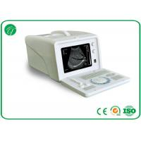 Quality 8 Segment TGC Real - Time B Mode Ultrasound Scanner OB Measurement Stable Screen for sale