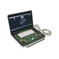 Quality 15 inch Notebook Diagnostic Ultrasonic Device Convex Probe Scans Abdomen Liver Kidney for sale